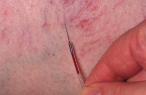 Microsclerotherapy for thread veins
